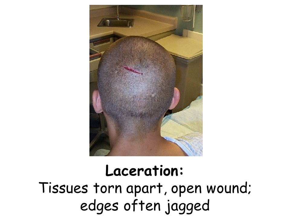 Laceration: Tissues torn apart, open wound; edges often jagged
