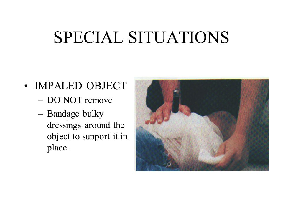 SPECIAL SITUATIONS IMPALED OBJECT –DO NOT remove –Bandage bulky dressings around the object to support it in place.