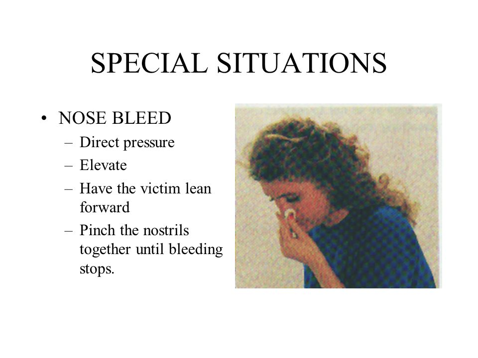 SPECIAL SITUATIONS NOSE BLEED –Direct pressure –Elevate –Have the victim lean forward –Pinch the nostrils together until bleeding stops.