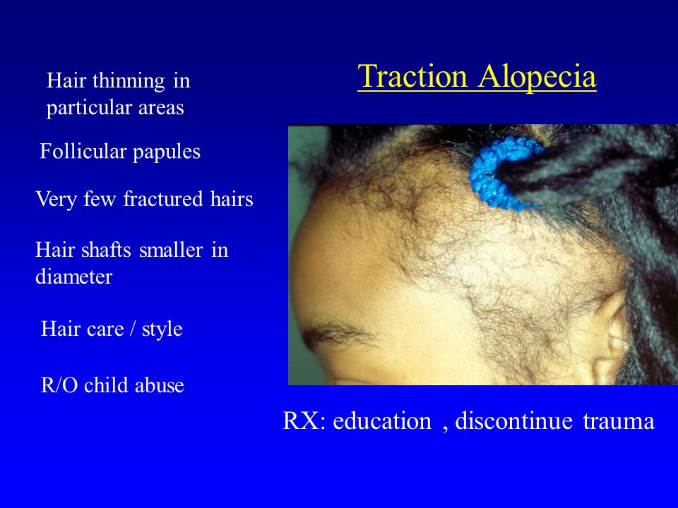 Traction Alopecia Hair thinning in particular areas Very few fractured hairs Hair shafts smaller in diameter Hair care / style R/O child abuse RX: education, discontinue trauma Follicular papules