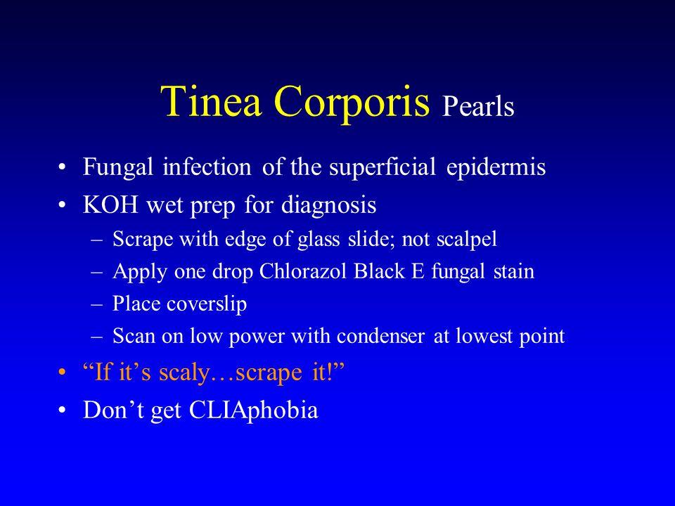Tinea Corporis Treatment Pearls Topical azole* unless widespread Treat b.i.d.
