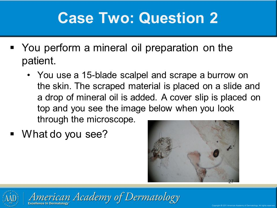 Case Two: Question 2  You perform a mineral oil preparation on the patient. You use a 15-blade scalpel and scrape a burrow on the skin. The scraped m