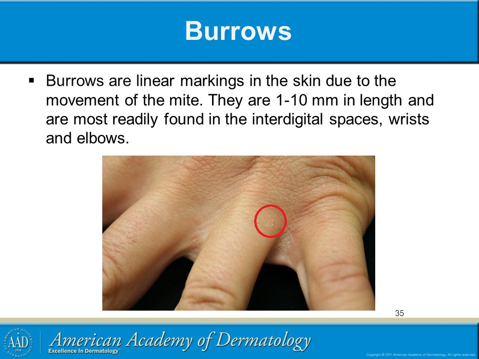 Burrows  Burrows are linear markings in the skin due to the movement of the mite. They are 1-10 mm in length and are most readily found in the interd