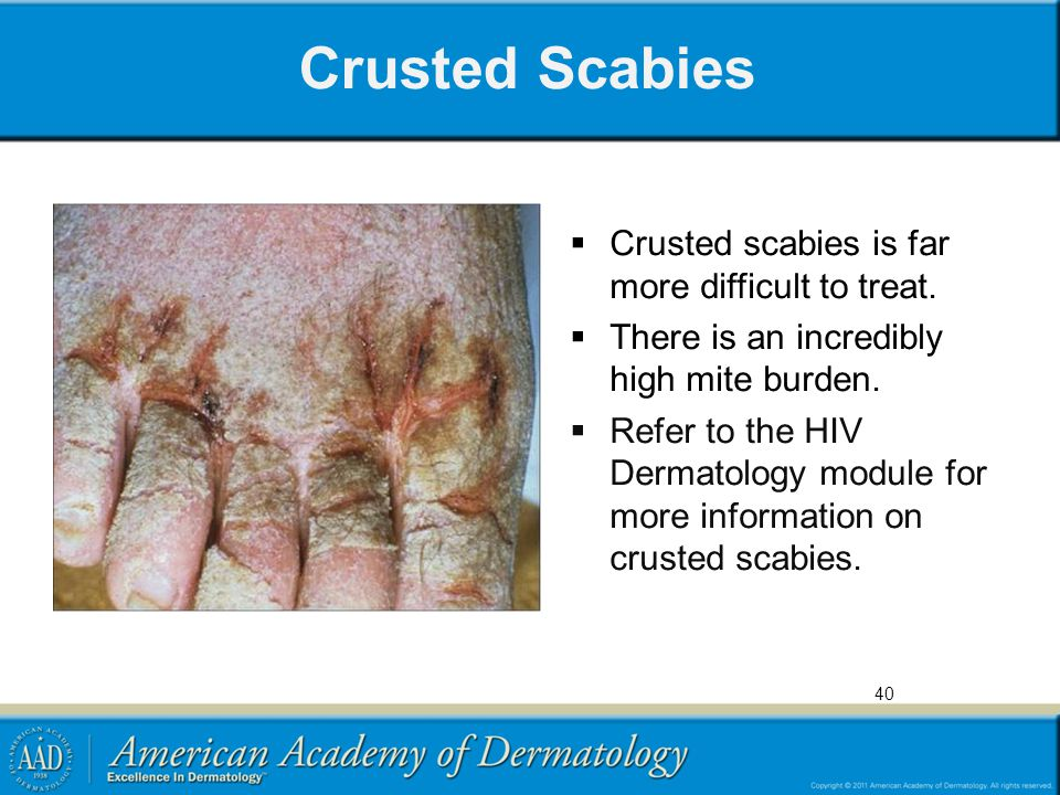 Crusted Scabies  Crusted scabies is far more difficult to treat.  There is an incredibly high mite burden.  Refer to the HIV Dermatology module for