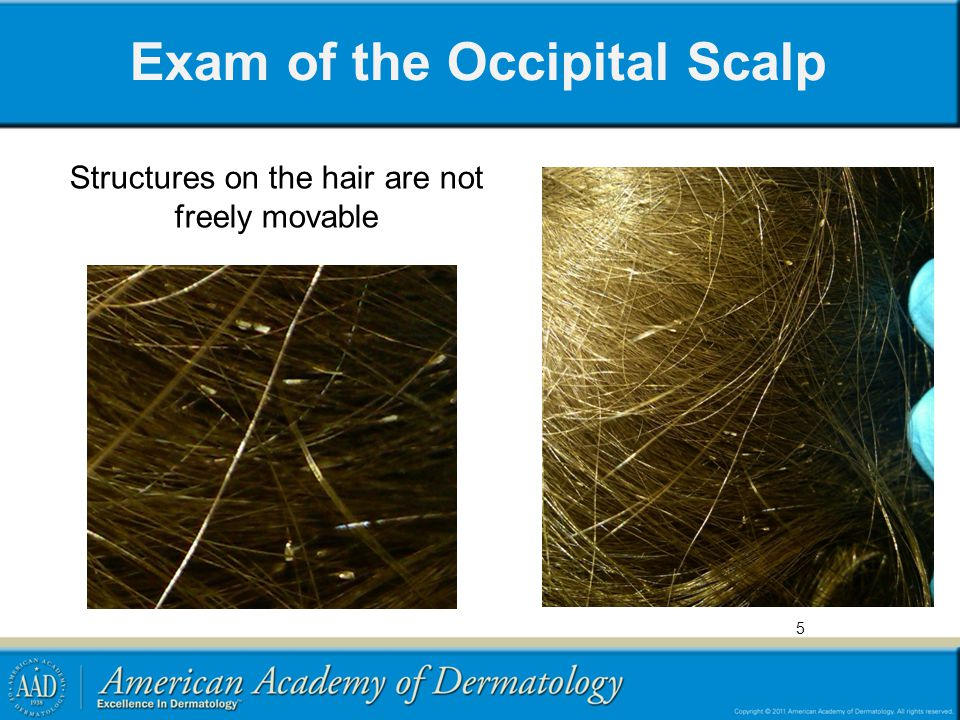 Exam of the Occipital Scalp Structures on the hair are not freely movable 5