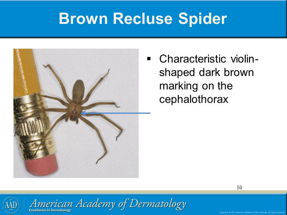 Brown Recluse Spider  Characteristic violin- shaped dark brown marking on the cephalothorax 59