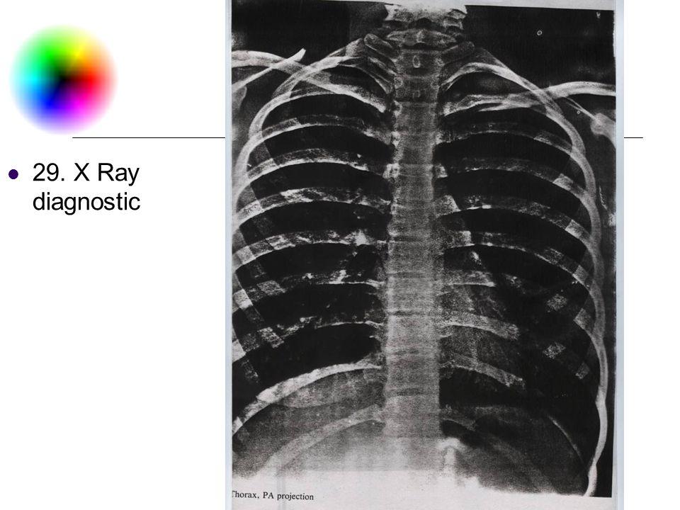 DC & CV Lab. CSIE NTU 29. X Ray diagnostic