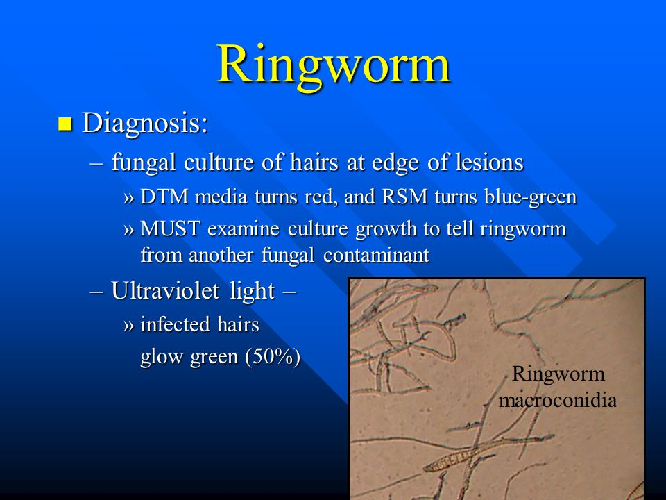 Ringworm Diagnosis: Diagnosis: –fungal culture of hairs at edge of lesions »DTM media turns red, and RSM turns blue-green »MUST examine culture growth to tell ringworm from another fungal contaminant –Ultraviolet light – »infected hairs glow green (50%) glow green (50%) Ringworm macroconidia