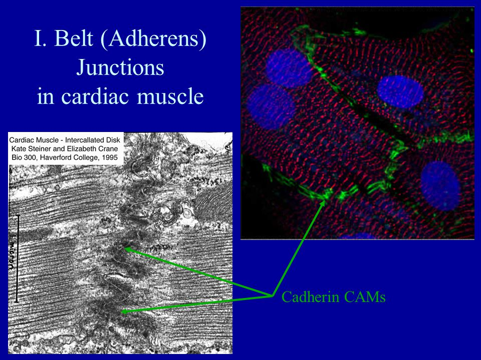 I. Belt (Adherens) Junctions in cardiac muscle Cadherin CAMs
