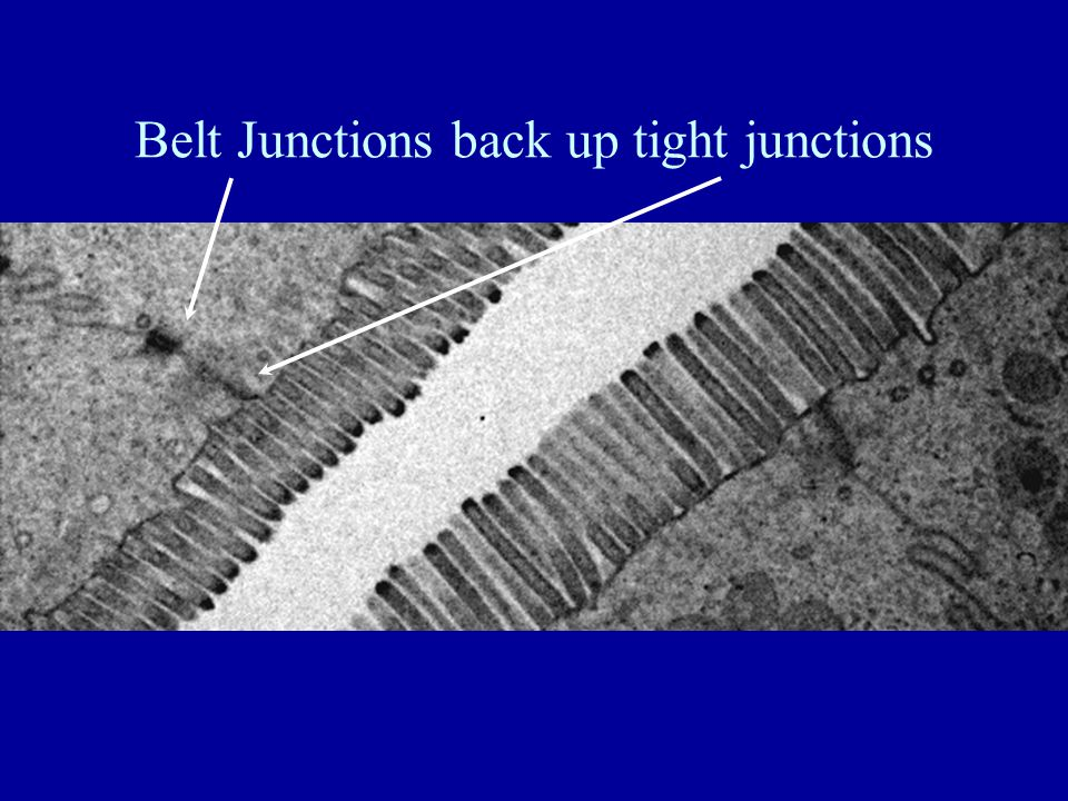 Belt Junctions back up tight junctions