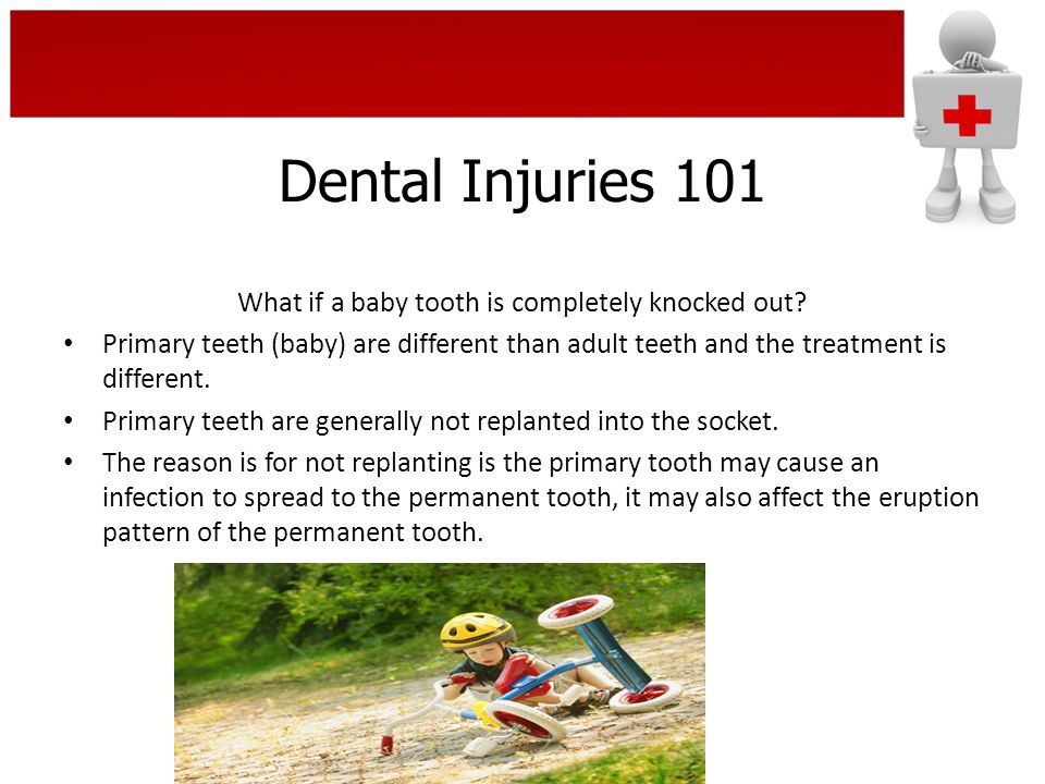 Dental Injuries 101 What if a baby tooth is completely knocked out? Primary teeth (baby) are different than adult teeth and the treatment is different
