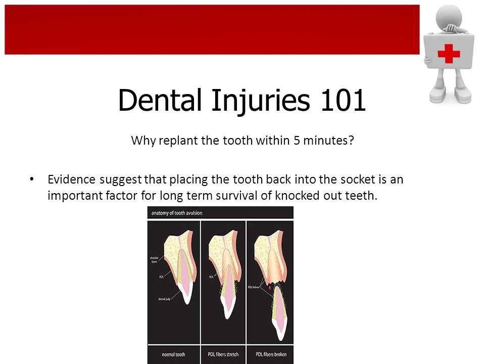 Dental Injuries 101 Why replant the tooth within 5 minutes? Evidence suggest that placing the tooth back into the socket is an important factor for lo