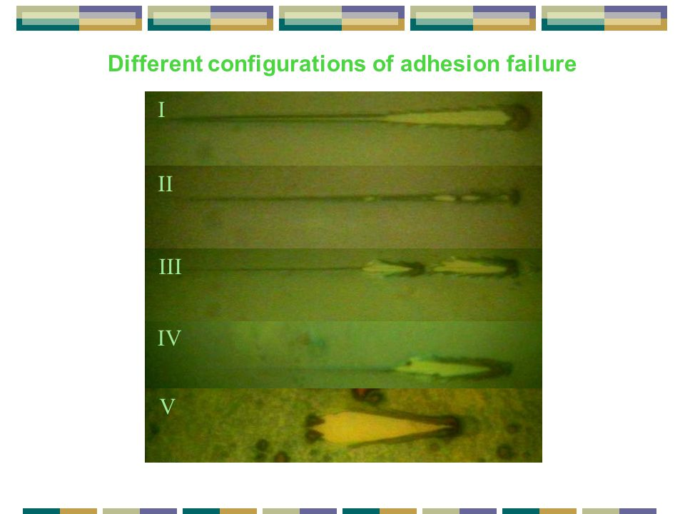 Different configurations of adhesion failure I II III IV V