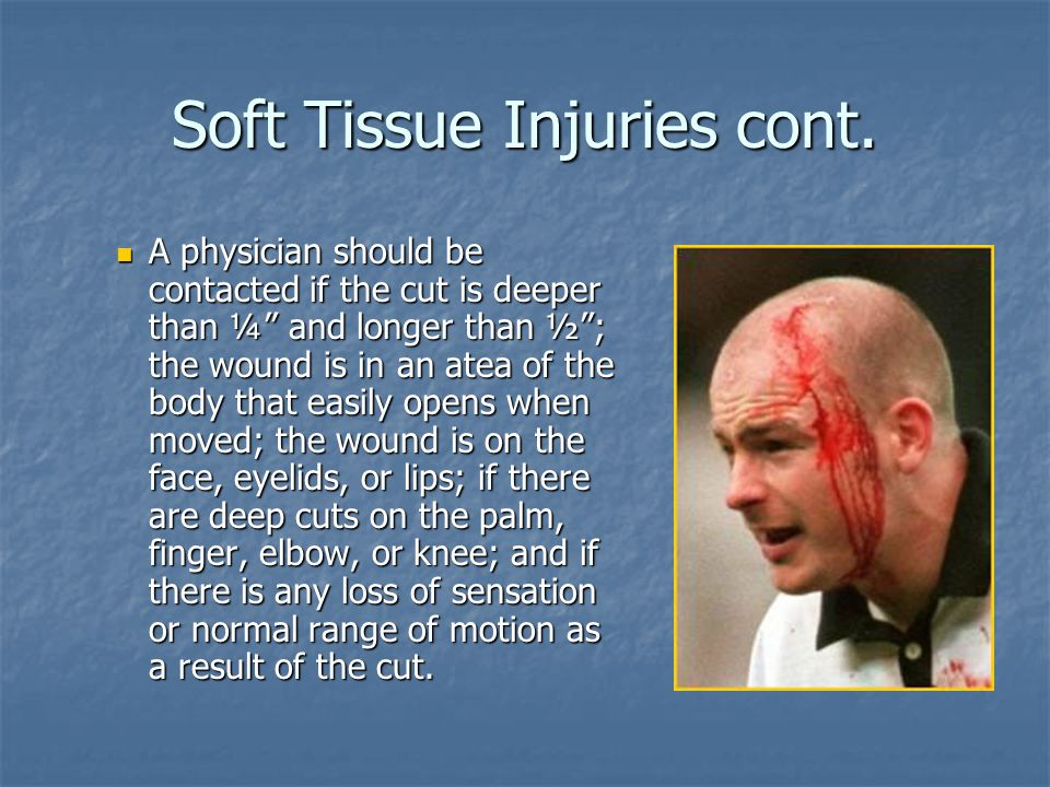 Soft Tissue Injuries cont.