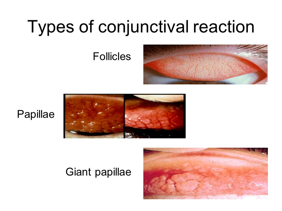 Types of conjunctival reaction Follicles Papillae Giant papillae