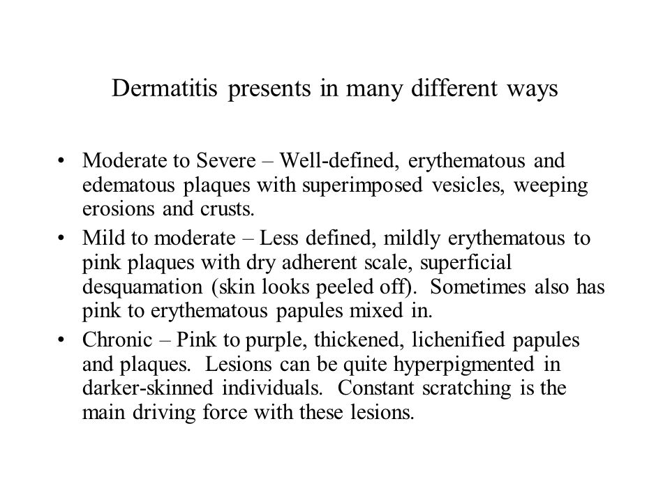 Dermatitis presents in many different ways Moderate to Severe – Well-defined, erythematous and edematous plaques with superimposed vesicles, weeping erosions and crusts.