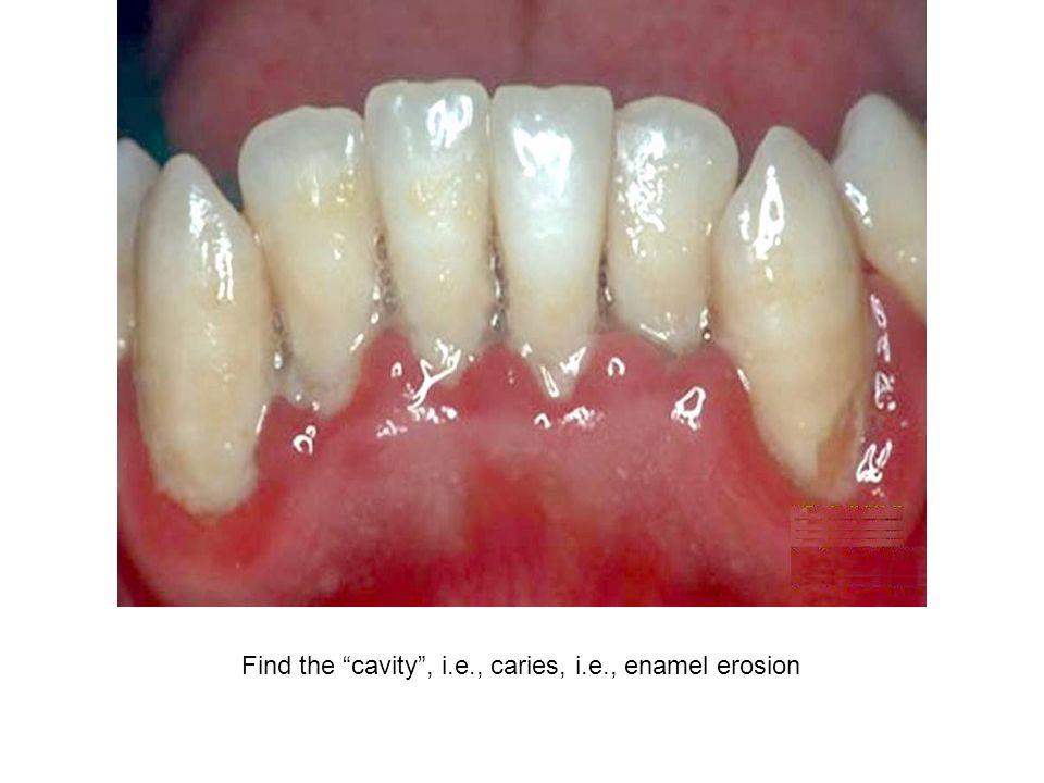 """Find the """"cavity"""", i.e., caries, i.e., enamel erosion"""
