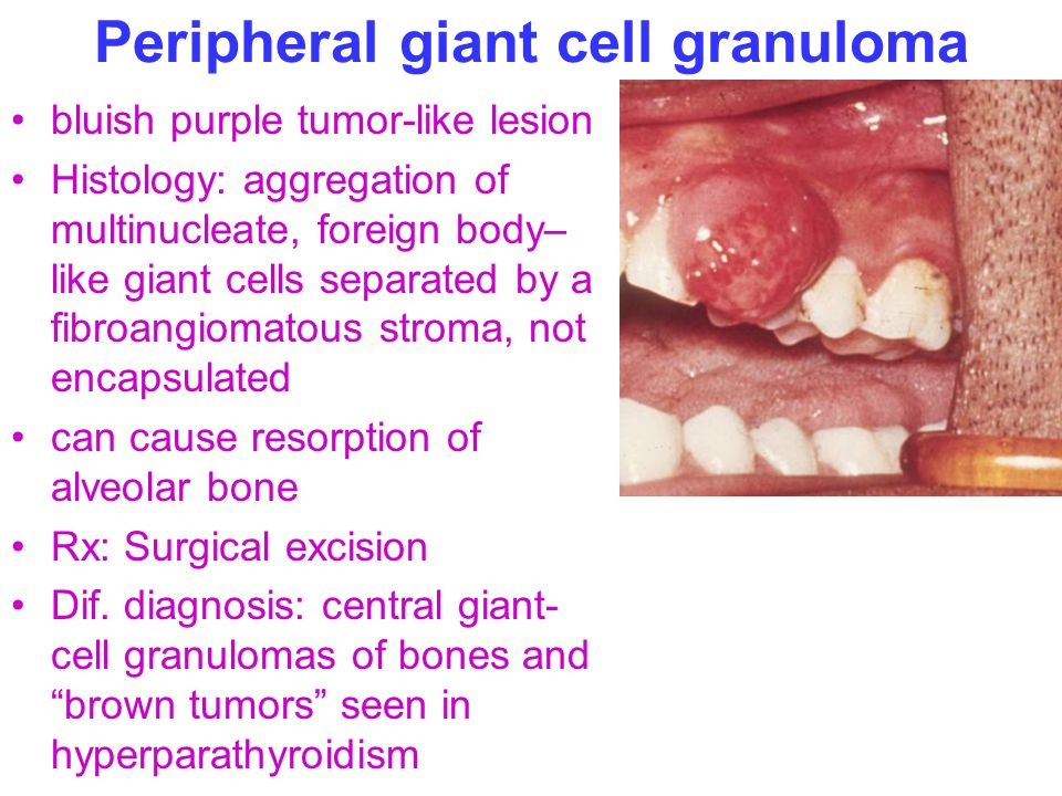 Peripheral giant cell granuloma bluish purple tumor-like lesion Histology: aggregation of multinucleate, foreign body– like giant cells separated by a