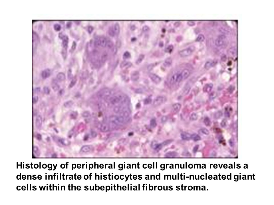 Histology of peripheral giant cell granuloma reveals a dense infiltrate of histiocytes and multi-nucleated giant cells within the subepithelial fibrou