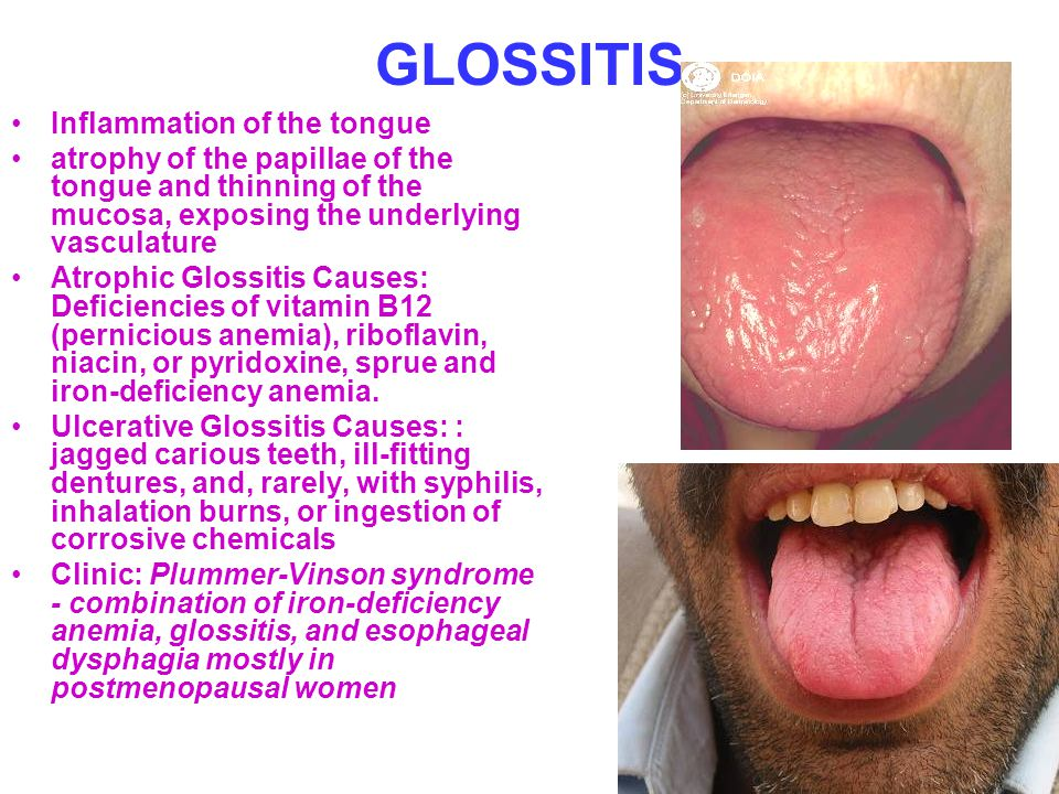 GLOSSITIS Inflammation of the tongue atrophy of the papillae of the tongue and thinning of the mucosa, exposing the underlying vasculature Atrophic Gl