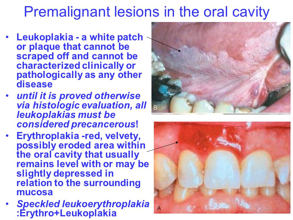 Premalignant lesions in the oral cavity Leukoplakia - a white patch or plaque that cannot be scraped off and cannot be characterized clinically or pat