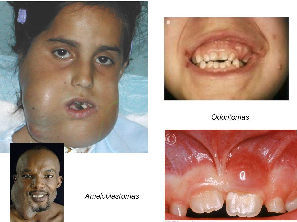 Ameloblastomas Odontomas