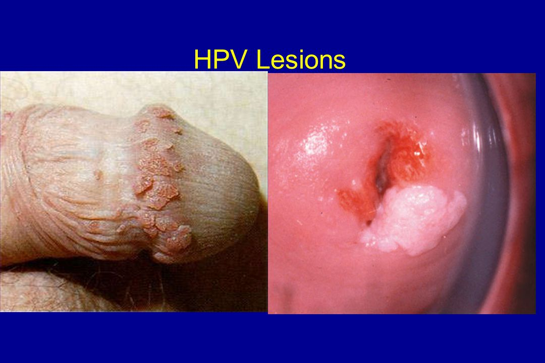 HPV Lesions