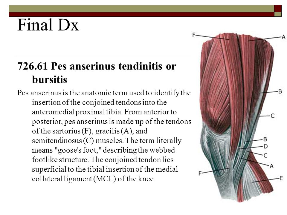 Final Dx 726.61 Pes anserinus tendinitis or bursitis Pes anserinus is the anatomic term used to identify the insertion of the conjoined tendons into t