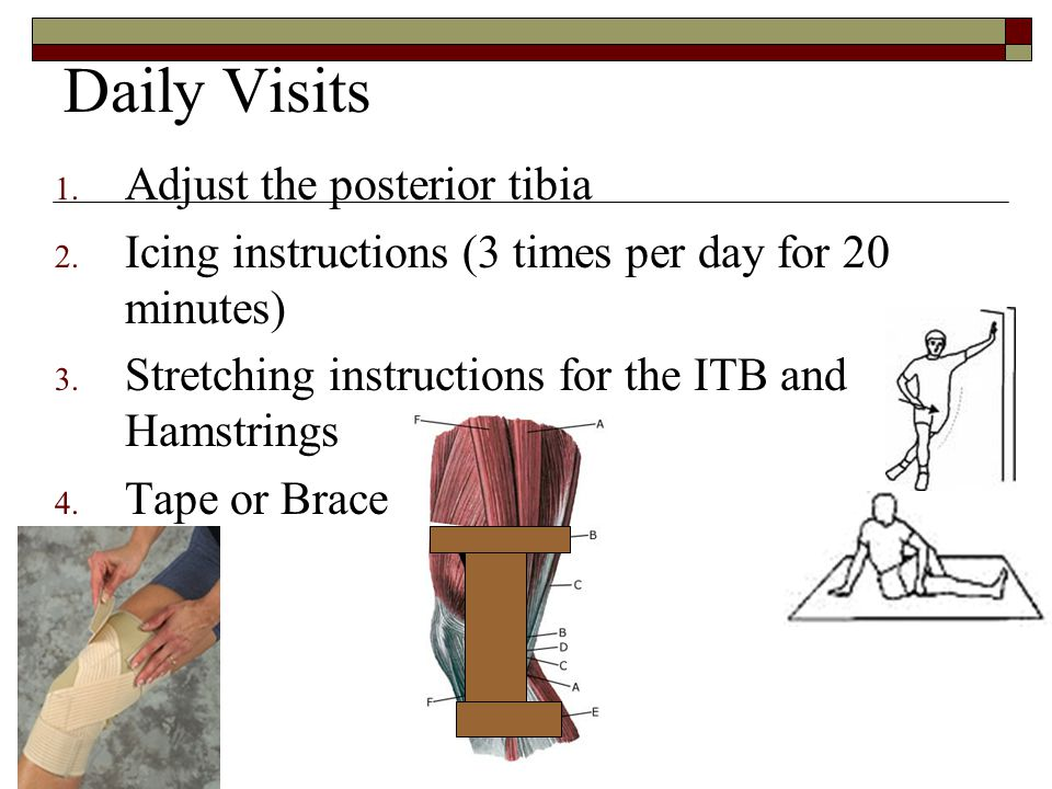 Daily Visits 1. Adjust the posterior tibia 2. Icing instructions (3 times per day for 20 minutes) 3. Stretching instructions for the ITB and Hamstring
