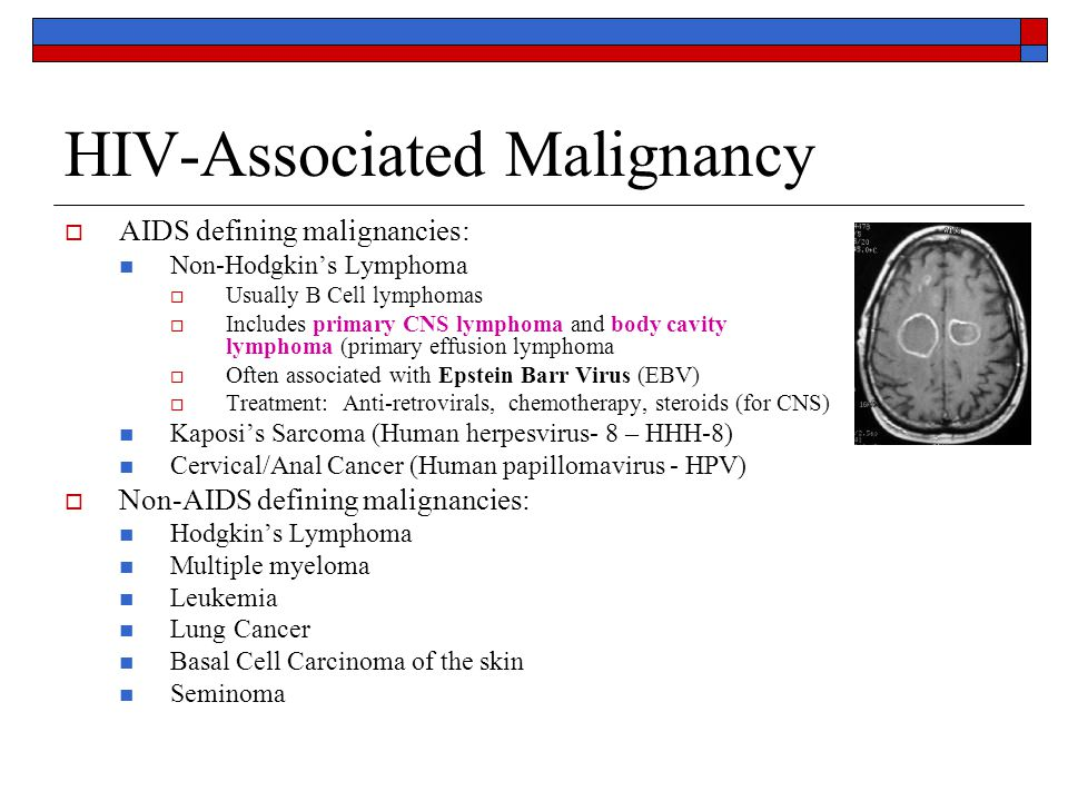 HIV-Associated Malignancy  AIDS defining malignancies: Non-Hodgkin's Lymphoma  Usually B Cell lymphomas  Includes primary CNS lymphoma and body cavity lymphoma (primary effusion lymphoma  Often associated with Epstein Barr Virus (EBV)  Treatment: Anti-retrovirals, chemotherapy, steroids (for CNS) Kaposi's Sarcoma (Human herpesvirus- 8 – HHH-8) Cervical/Anal Cancer (Human papillomavirus - HPV)  Non-AIDS defining malignancies: Hodgkin's Lymphoma Multiple myeloma Leukemia Lung Cancer Basal Cell Carcinoma of the skin Seminoma