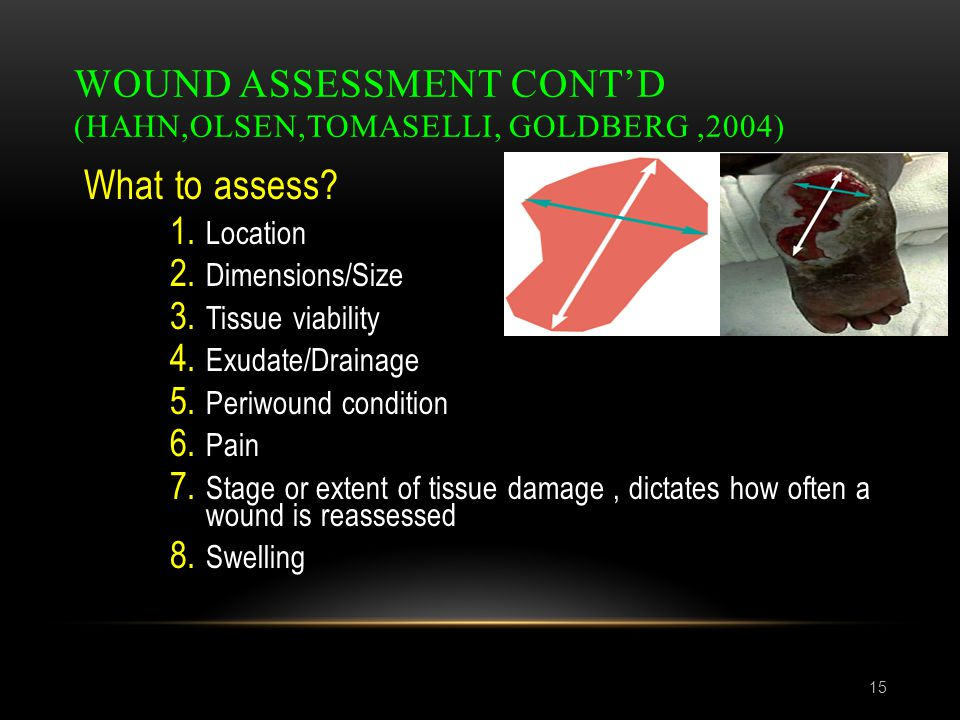 WOUND ASSESSMENT CONT'D (HAHN,OLSEN,TOMASELLI, GOLDBERG,2004) 15 What to assess? 1. Location 2. Dimensions/Size 3. Tissue viability 4. Exudate/Drainag