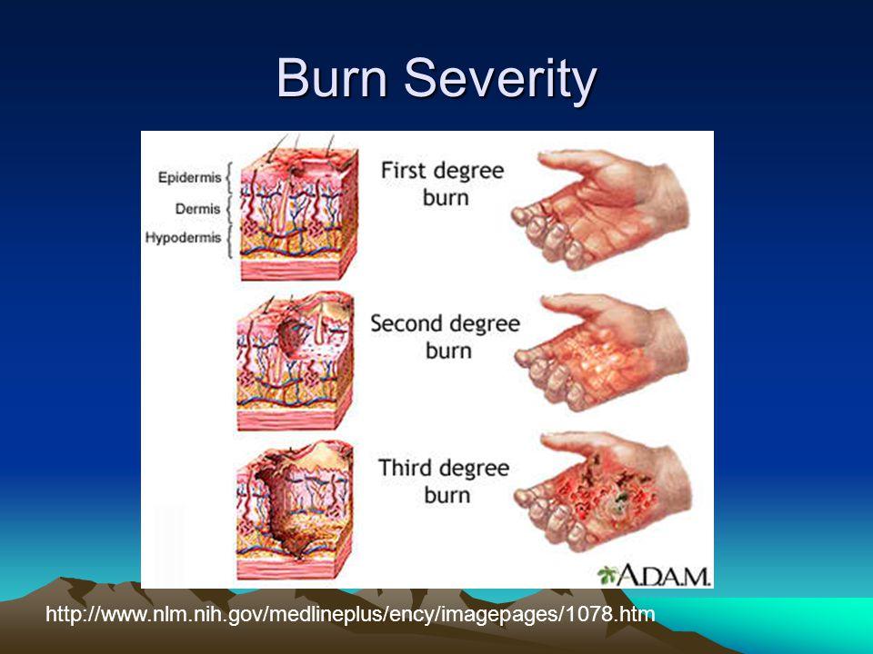 Burn Severity http://www.nlm.nih.gov/medlineplus/ency/imagepages/1078.htm