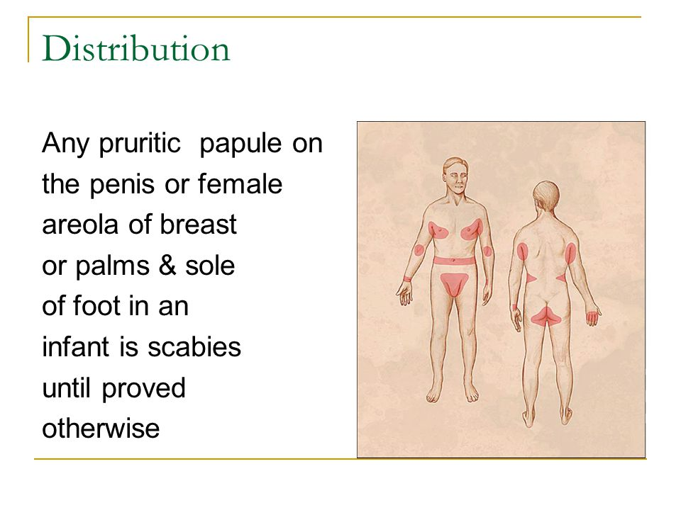 Distribution Any pruritic papule on the penis or female areola of breast or palms & sole of foot in an infant is scabies until proved otherwise