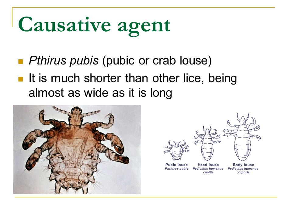 Causative agent Pthirus pubis (pubic or crab louse) It is much shorter than other lice, being almost as wide as it is long