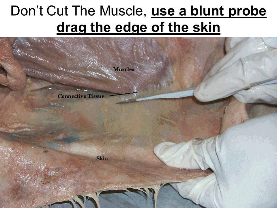 Don't Cut The Muscle, use a blunt probe drag the edge of the skin
