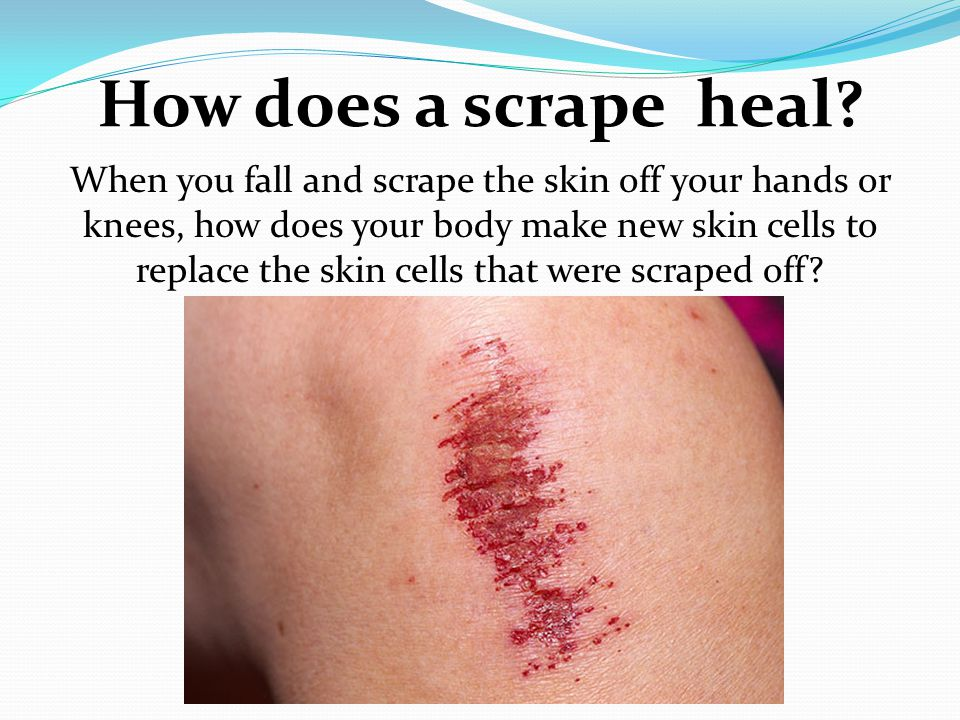 How does a scrape heal? When you fall and scrape the skin off your hands or knees, how does your body make new skin cells to replace the skin cells th