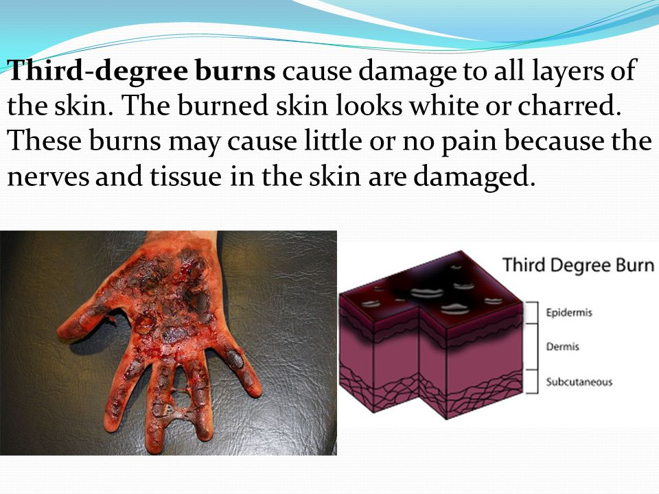 Third-degree burns cause damage to all layers of the skin. The burned skin looks white or charred. These burns may cause little or no pain because the