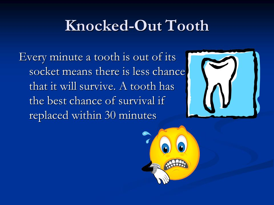 Knocked-Out Tooth A knocked-out permanent tooth is a dental emergency!.