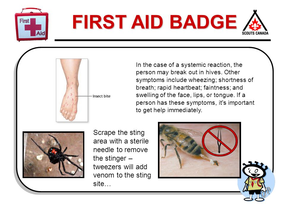 FIRST AID BADGE In the case of a systemic reaction, the person may break out in hives. Other symptoms include wheezing; shortness of breath; rapid hea