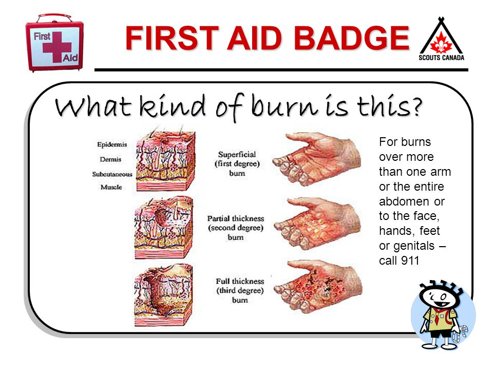 FIRST AID BADGE What kind of burn is this? For burns over more than one arm or the entire abdomen or to the face, hands, feet or genitals – call 911