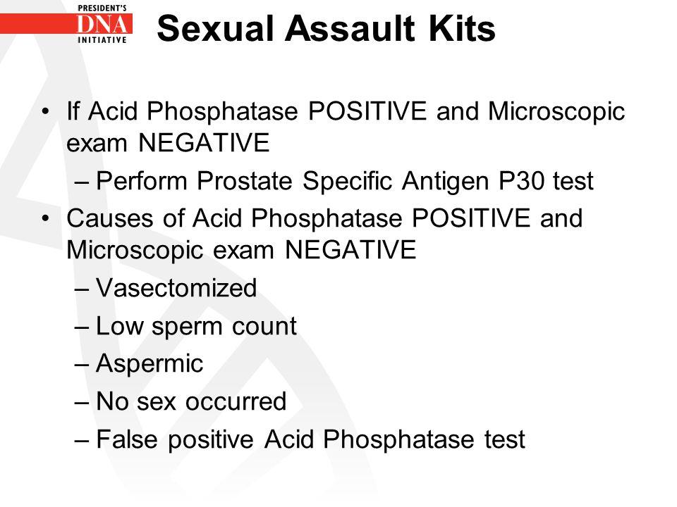 Sexual Assault Kits If Acid Phosphatase POSITIVE and Microscopic exam NEGATIVE –Perform Prostate Specific Antigen P30 test Causes of Acid Phosphatase