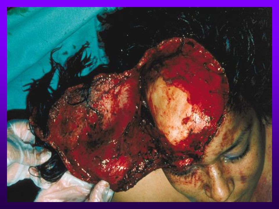 Avulsion Skin tissue partially or completely torn away with severe bleeding possible.