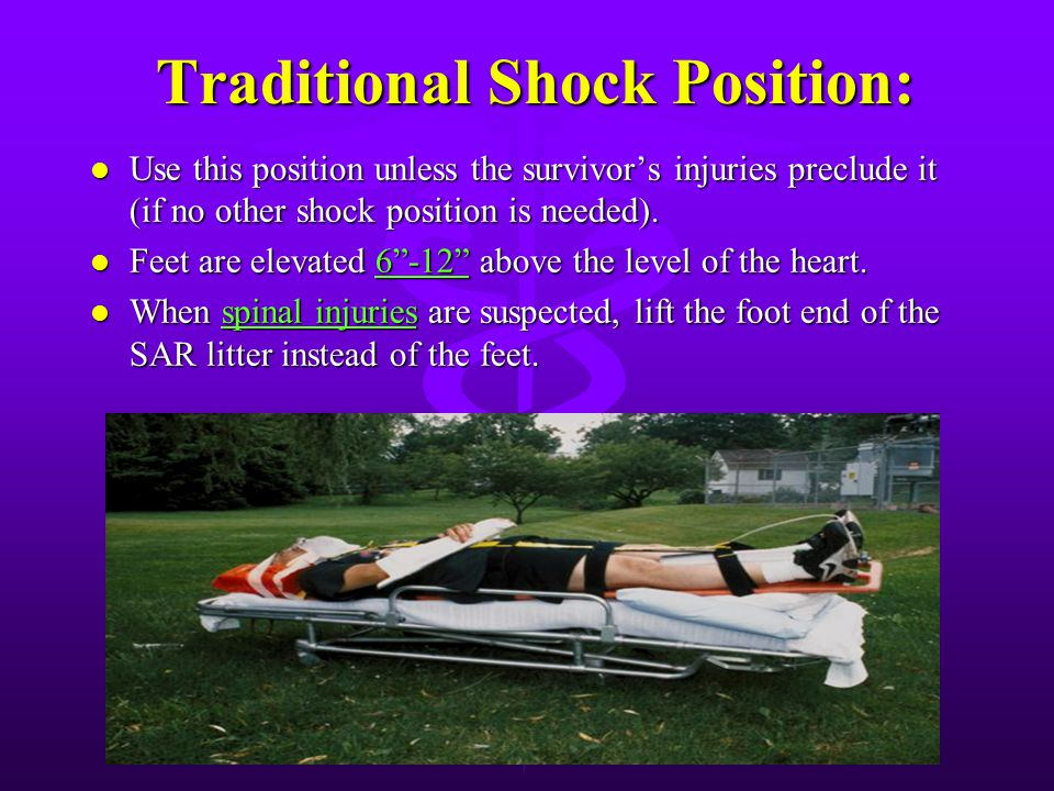 Shock: Shock: All survivor's will be in some form of shock. Position survivor for transport in the rescue vehicle in one of the following five positio