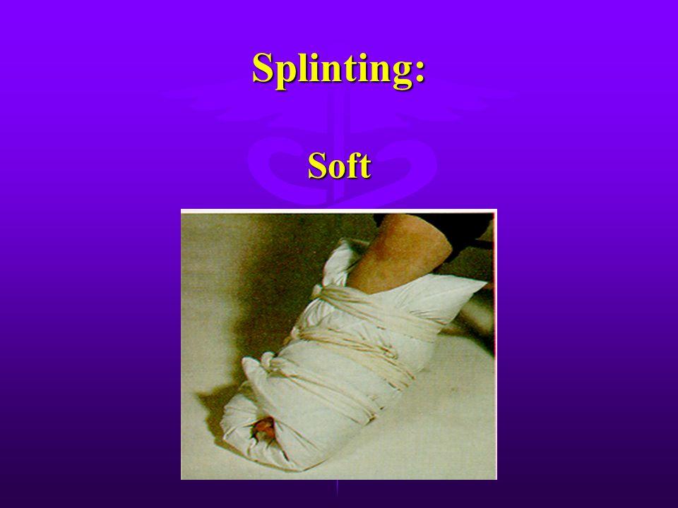 Splinting: There are three types of splints. Rigid Rigid