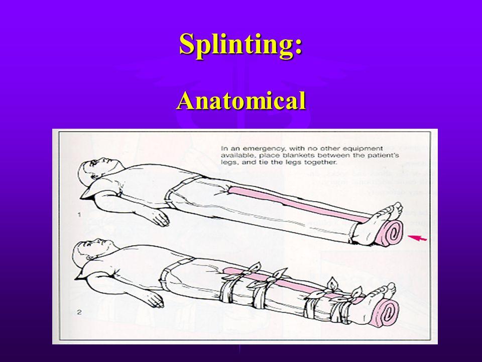 Splinting: Soft