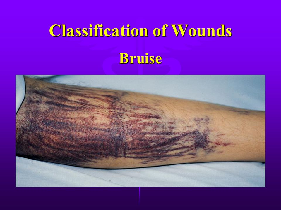 Wounds: There are 5 classification of wounds: There are 5 classification of wounds: