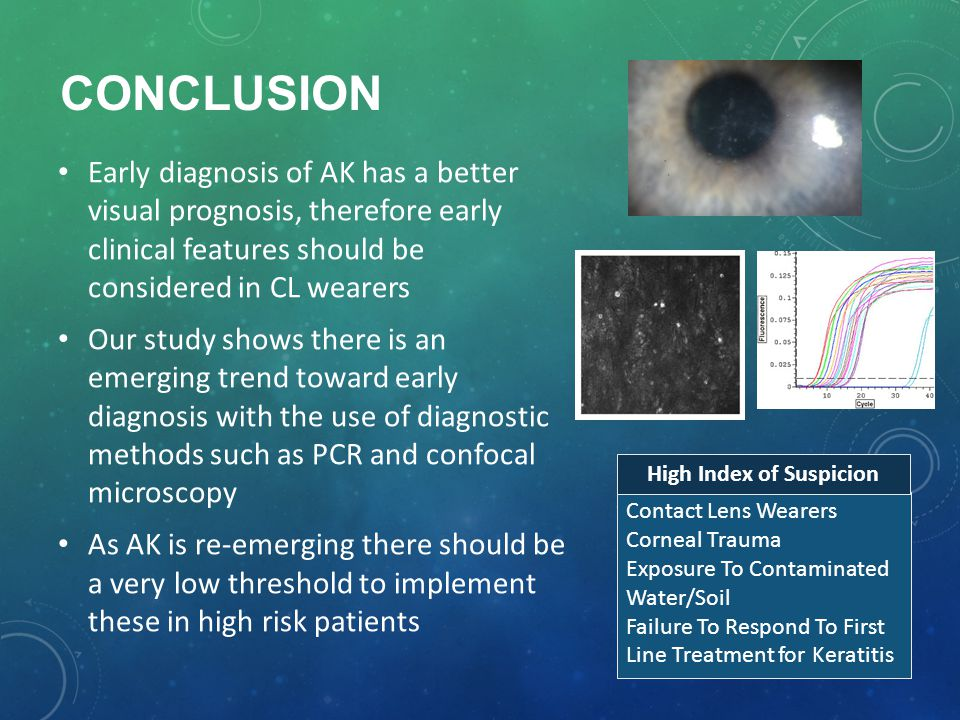 CONCLUSION Early diagnosis of AK has a better visual prognosis, therefore early clinical features should be considered in CL wearers Our study shows there is an emerging trend toward early diagnosis with the use of diagnostic methods such as PCR and confocal microscopy As AK is re-emerging there should be a very low threshold to implement these in high risk patients Contact Lens Wearers Corneal Trauma Exposure To Contaminated Water/Soil Failure To Respond To First Line Treatment for Keratitis High Index of Suspicion