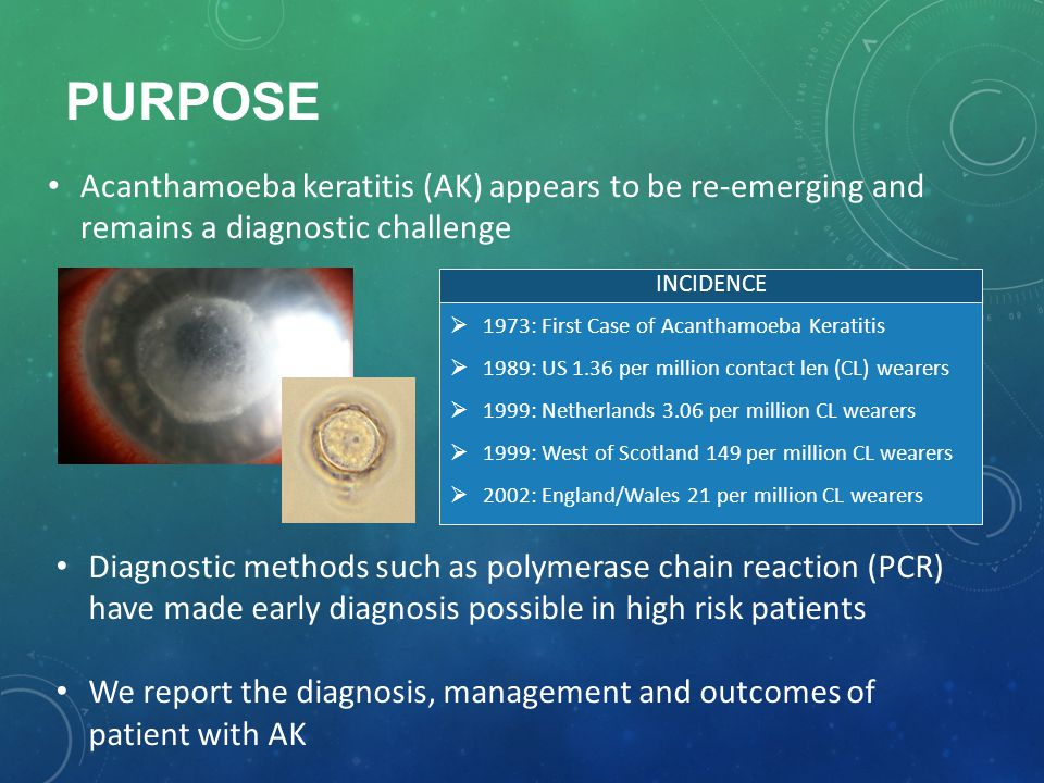 PURPOSE Acanthamoeba keratitis (AK) appears to be re-emerging and remains a diagnostic challenge  1973: First Case of Acanthamoeba Keratitis  1989: