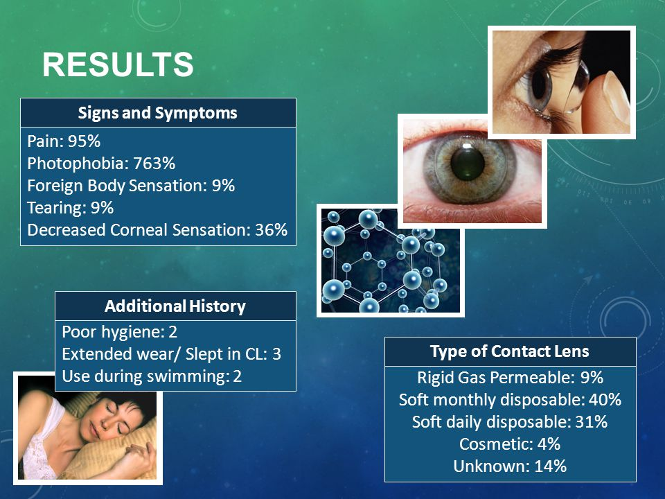 RESULTS Rigid Gas Permeable: 9% Soft monthly disposable: 40% Soft daily disposable: 31% Cosmetic: 4% Unknown: 14% Pain: 95% Photophobia: 763% Foreign