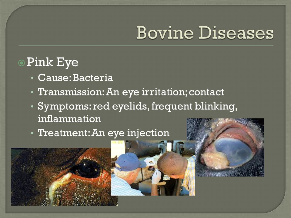  Pink Eye Cause: Bacteria Transmission: An eye irritation; contact Symptoms: red eyelids, frequent blinking, inflammation Treatment: An eye injection